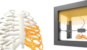Impresion 3d vertebras
